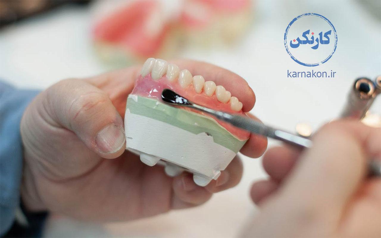 رشته های پیراپزشکی شامل چیست - ساخت پروتزهای دندانی