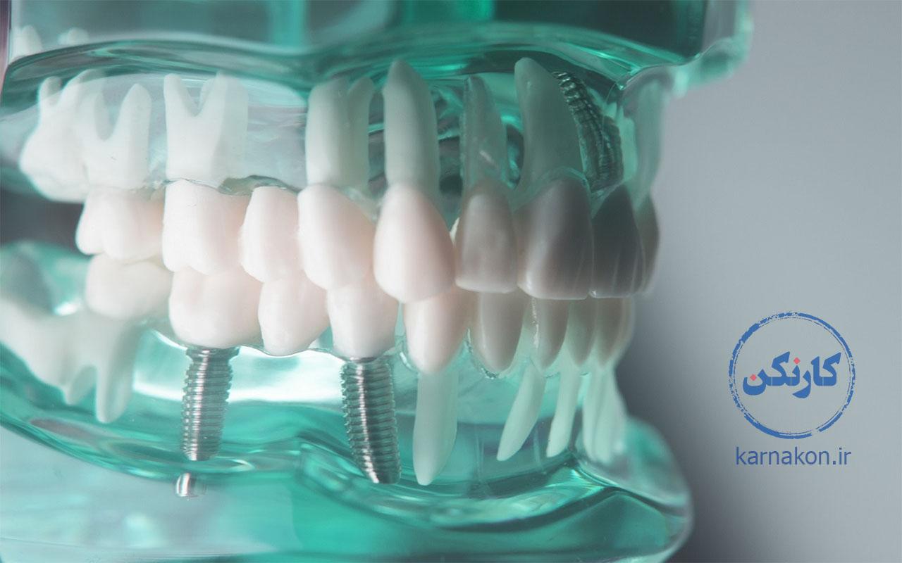 معرفی لیست رشته های پیراپزشکی - پروتزهای دندانی
